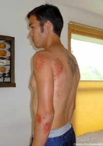 Road rash and cuts received during the fall in Bear Canyon, the worst of the accident isn't visible though.