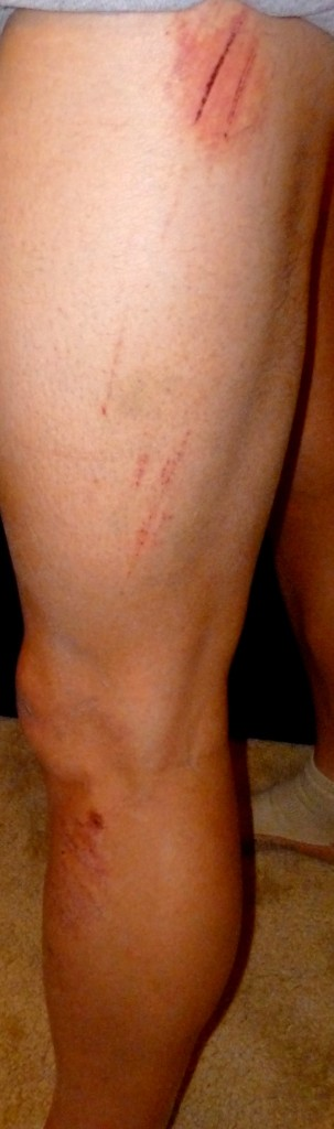 The road rash/scratches on my legs as well. They run from the calf to the upper thigh.