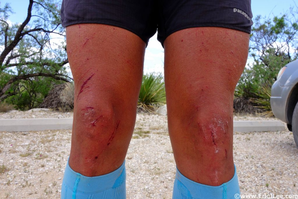 The ravages of yucca and cats claw, bloody legs.